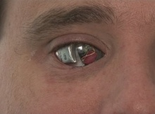 Man With An Implanted Bionic Eye